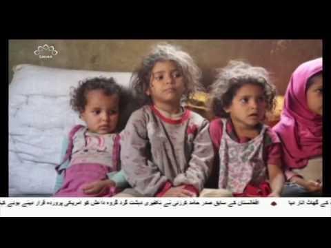 [31May2017] یمن کو تباہ ہونے سے بچائے جانے کی ضرورت پر تاکید - Urdu