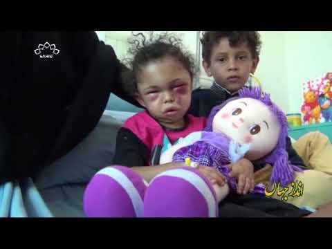 [18Jan2018] یمن پر سعودی جارحیت - Urdu
