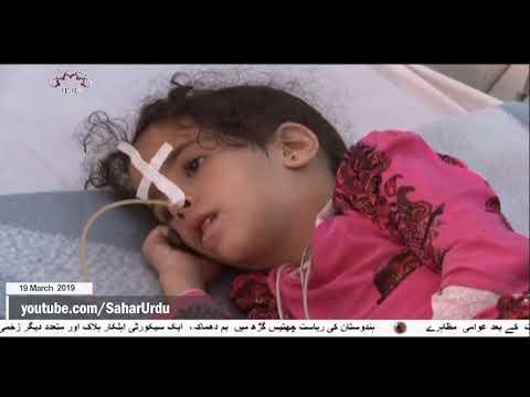 [19Mar2019] گذشتہ ایک سال میں ایک لاکھ یمنی بچے سعودی جارحیت  - Urdu