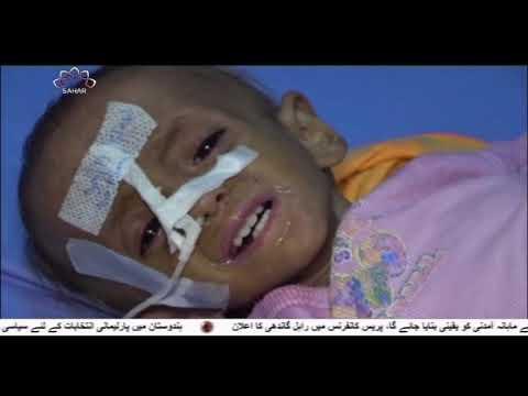 [25Mar2019] یمن پر سعودی اتحاد کی جارحیت کے چار برس - Urdu