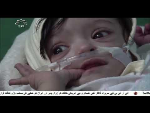 جارحین کے خلاف یمنی عوام کا مظاہرہ   - 06 اکتوبر 2019 - Urdu