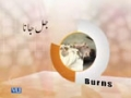 [Medical Tips] Zindagi Bachain - Burns - Urdu
